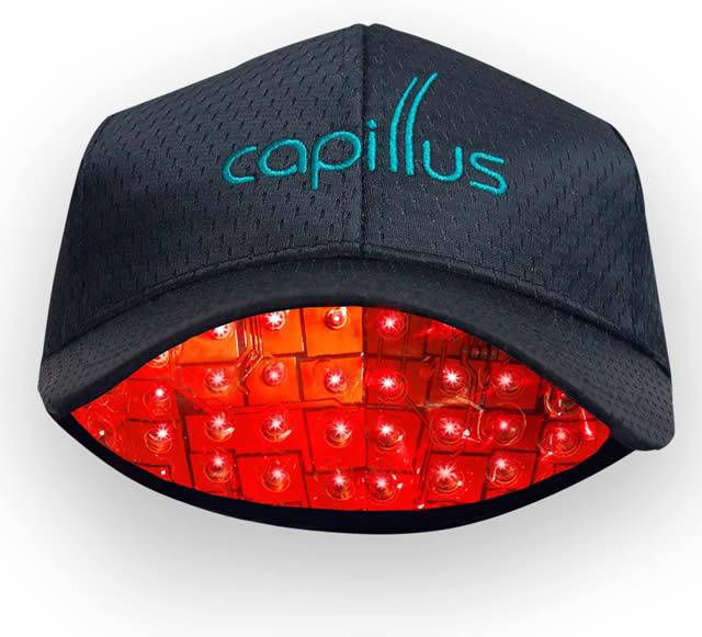 【通販で買える】レーザー育毛キャップ Capillus(カピラス)が凄い-02