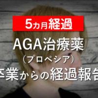 【5カ月経過】AGA治療薬(プロペシア)卒業からの経過報告