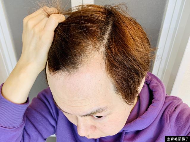 【薄毛進行!?】脱プロペシア11ヶ月目の毛髪状況とやるべきこと-01