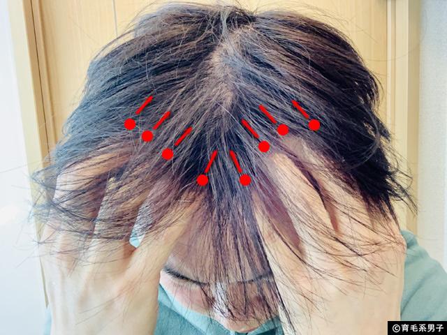 【体験開始】ミノキシジル12%+フィナステリド+α[フォリックスFR12]-10