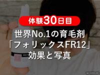 【体験30日目】世界No.1の育毛剤「フォリックスFR12」効果と写真-00