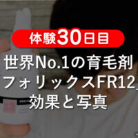 【体験30日目】世界No.1の育毛剤「フォリックスFR12」効果と写真