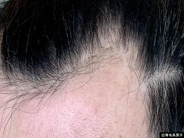 【体験30日目】世界No.1の育毛剤「フォリックスFR12」効果と写真-03