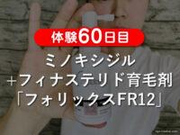 【体験60日目】ミノキシジル+フィナステリド育毛剤フォリックスFR12-00