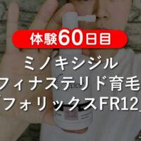 【体験60日目】ミノキシジル+フィナステリド育毛剤フォリックスFR12