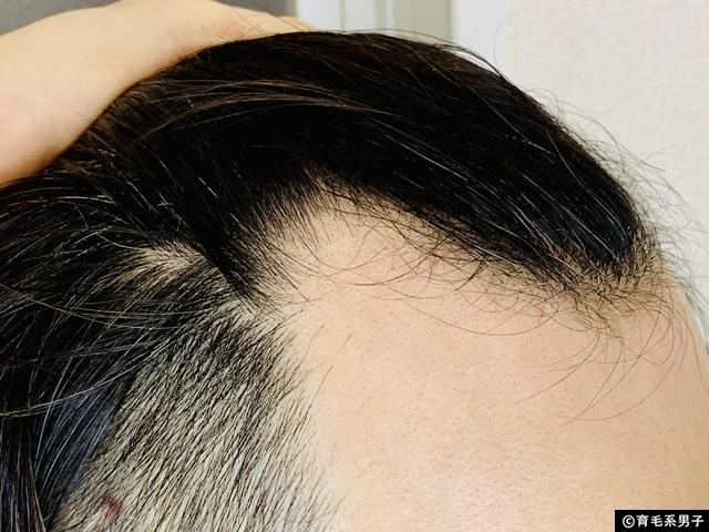 【体験60日目】ミノキシジル+フィナステリド育毛剤フォリックスFR12-05