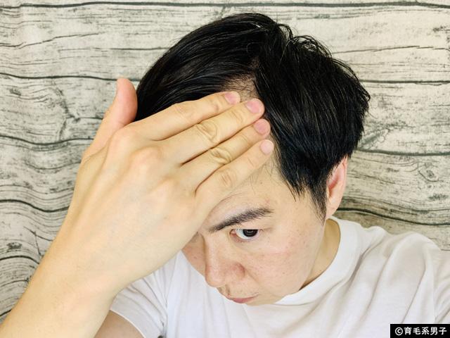 【育毛剤】3つの有効成分+和漢保湿エキス配合「穂乃髪」効果-04